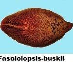 Fasciolopsis-buskii-2