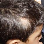 triangularna_alopecia